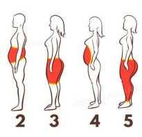 Три типа ожирения