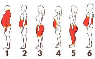Виды ожирения у женщин