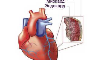 Ожирение сердца причины