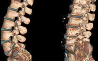 Гимнастика при остеохондрозе поясничного отдела видео