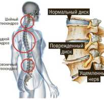 Гимнастика для грудного позвоночника