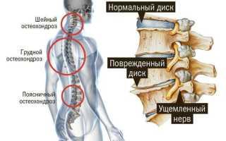 Гимнастика на грудной отдел позвоночника