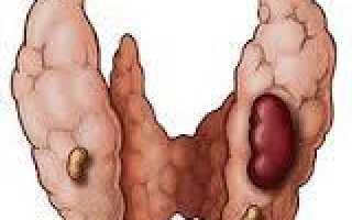 Диета при гиперпаратиреозе у женщин