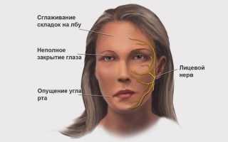 Гимнастика при воспалении тройничного нерва