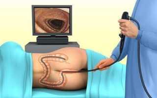 Колоноскопия кишечника подготовка к процедуре в домашних