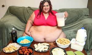 Алиментарное ожирение 2 степени