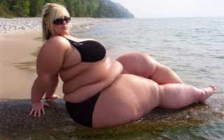 Морбидное ожирение это
