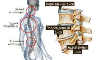 Лечебная гимнастика при грудном и шейном остеохондрозе