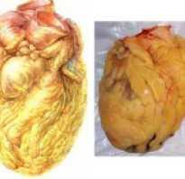 Ожирение сердца лечение