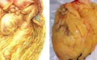 Ожирение сердца бывает у худых