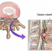 Комплекс упражнений при грыже межпозвоночной и беременность