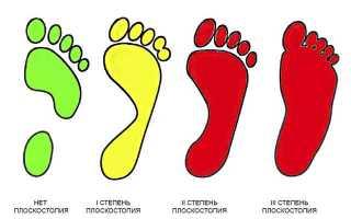 Гимнастика для детей при плоскостопии