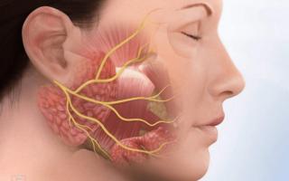 Массаж при воспалении лицевого нерва видео
