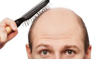 Препараты против выпадения волос у мужчин