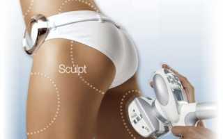 Rf процедура по телу
