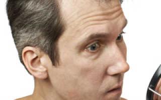 Медицинские препараты для роста волос