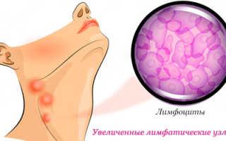 Диета при лимфоме